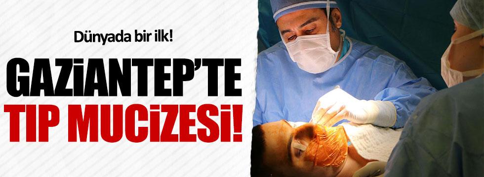 Gaziantep'te kaburga kemiğinden kulak yaptılar