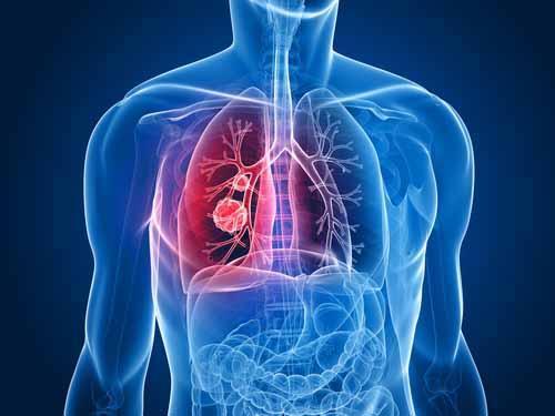 Akciğer kanserinde 'kombine tedavi'