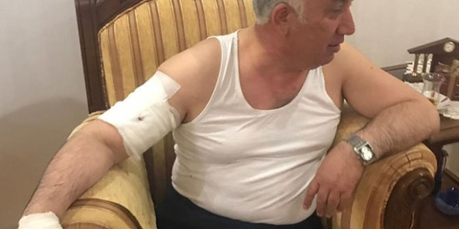 Belediye Başkanı'na yardım götürdüğü evde köpek saldırdı