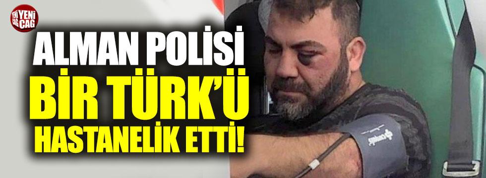 Alman polisi Türk vatandaşını hastanelik etti