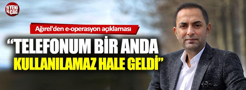 Murat Ağırel'den 'e-operasyon' açıklaması