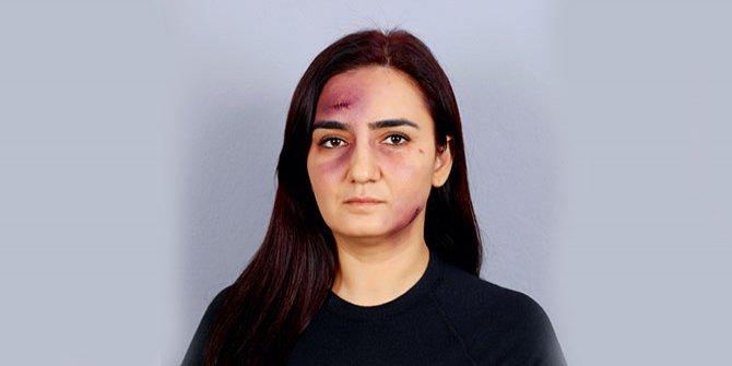 CHP'li vekilden kadına şiddete dikkat çekmek için ilginç yöntem