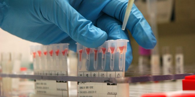 Korona virüs, o kan grubuna daha çok bulaşıyor