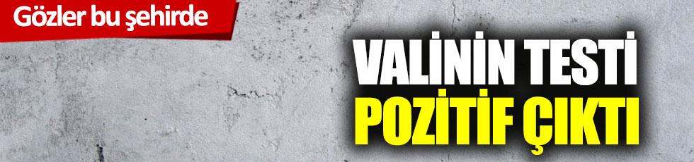 Kırklareli Valisi'nin virüs testi pozitif çıktı