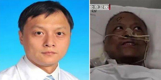 Rengi değişen Çinli doktordan acı haber