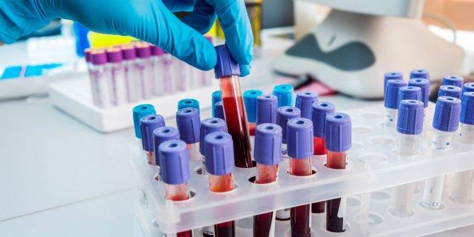 Araştırmalar sonuçlandı: İşte virüste daha riskli olan kan grupları