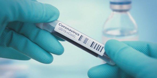 Aşıyı dün ABD bugün Rusya buldu!