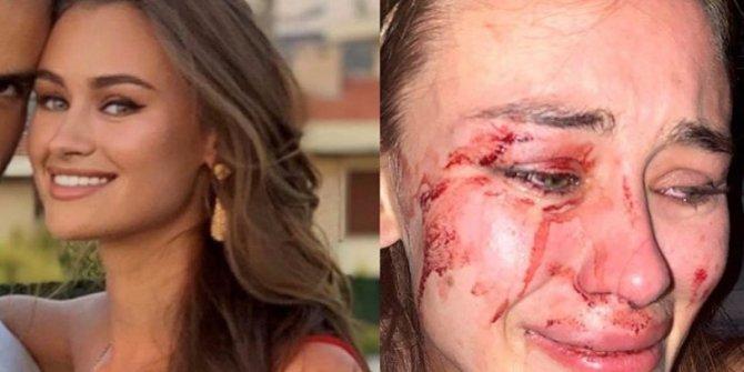 Çeşme'deki şiddeti dünyaya duyurdu!Ukraynalı top modele Çeşme'de bodyguard terörü