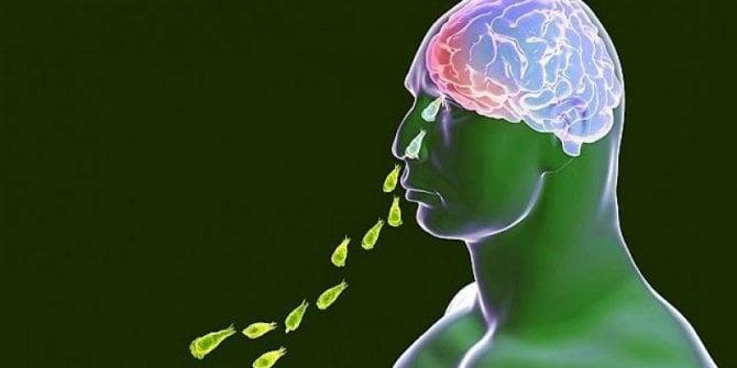 Kabus gerçek oldu. Musluk suyundan bulaşıyor beyninizi yiyor