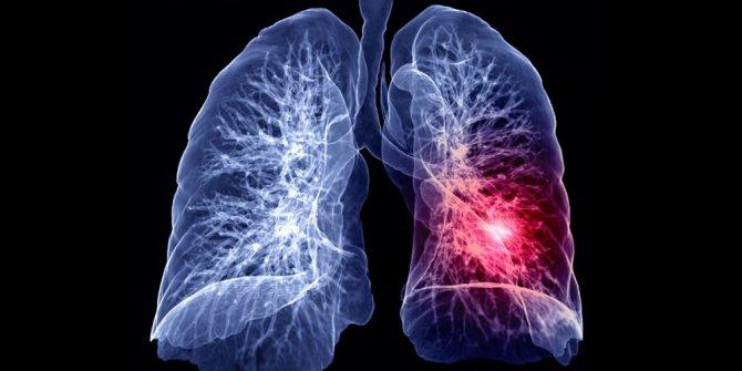 Korona virüs akciğerlere böyle sızıyor... 60 saatte ele geçiriyor