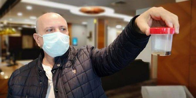 İstanbul'da yaşayan Yusuf Çebi'nin Akciğerinden 32 yıl sonra çam fıstığı çıktı