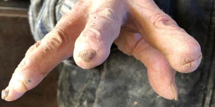 72 yıldır yaptığı iş ellerini bu hale getirdi!