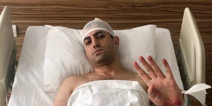 Murat Alan'a saldırıda 3 gözaltı