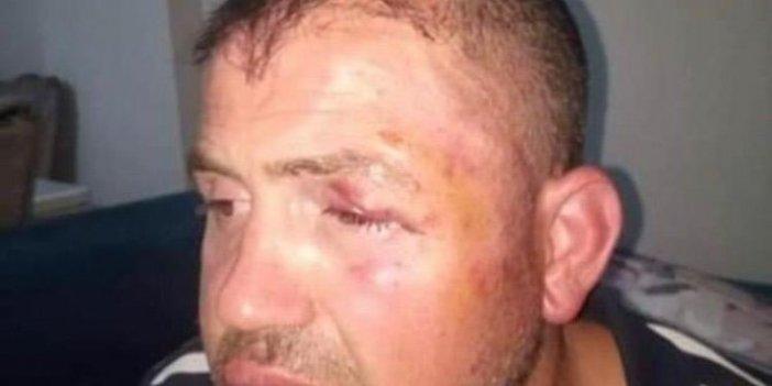 Bursa'da gaziyi hastanelik edenler tutuklandı