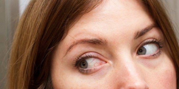 Gözlerdeki kanlanma göz tümörünün belirtisi olabilir!