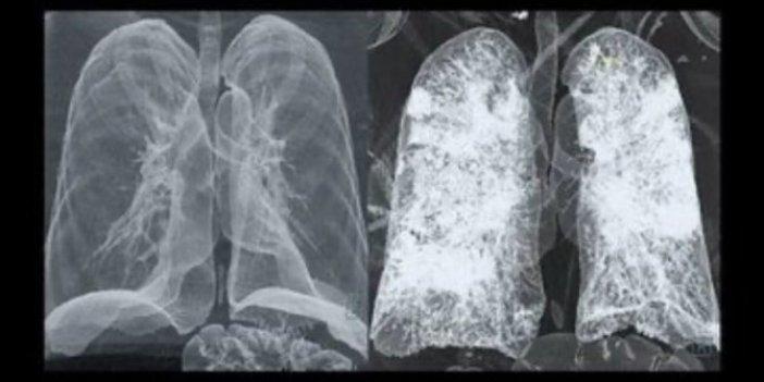 Korona ciğerleri bu hale getiriyor: Siz hâlâ dışarıda gezin