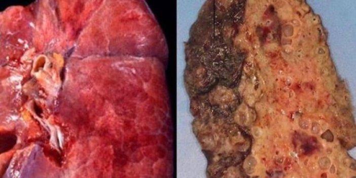 Korona virüsün akciğerlere verdiği hasar ilk defa bu kadar net görüntülendi