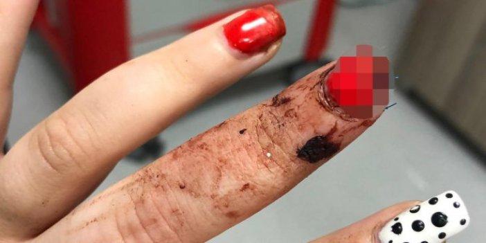 Gittiği köftecide parmağı koptu! Hayatının şokunu yaşadı