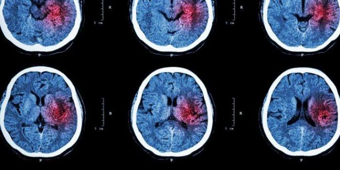 Milyonlarca insan tehdit altında! Beyin kanaması riskini artırıyor