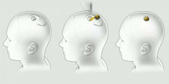 Elon Musk'ın dünyayı değiştirecek projesi Neuralink ,Türk halkına soruldu! Beyninize Neuralink çipi taktırır mısınız?
