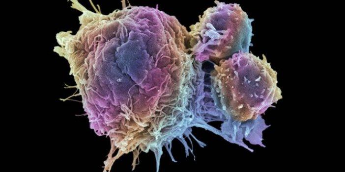 Kanser araştırmacıları güzel haberi duyurdu. Yayılma güzergahına el konuldu. Daha büyük haberlerin müjdecisi