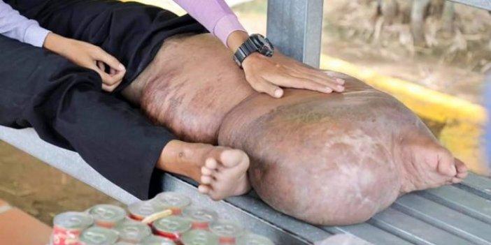 Sivrisinek ısırığı ayağını davul gibi yaptı. Türkiye'de de Asya Kaplan Sivrisineği'ne savaş açıldı