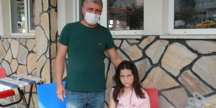12 yaşındaki kız çocuğunu pitbullar paramparça etti. Geceleri tir tir titriyor