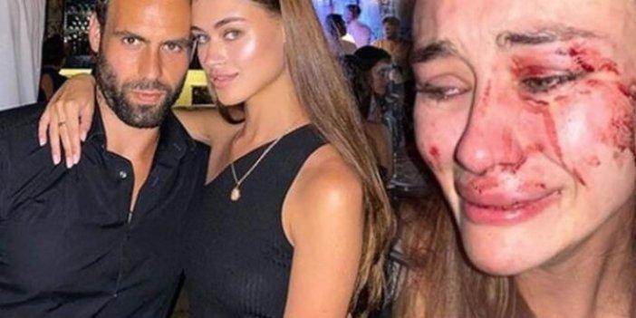 Ukraynalı top model Daria Kyryliuk'tan şoke eden karar, Çeşme'de yediği dayakla gündeme gelmişti