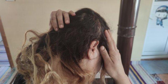 Genç kadına tahralı saldırı