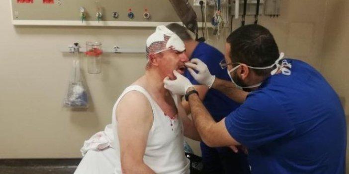 Polis Selçuk Özdağ'a saldıranların peşinde. Sosyal medya hesapları inceleniyor