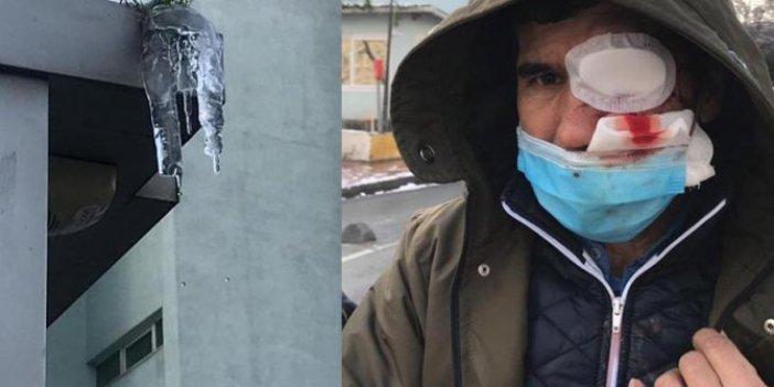 Şişli'de binadan düşen buz sarkıtı öldürüyordu. Kanlar içinde yere yığıldı