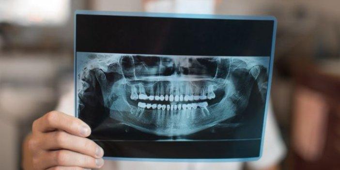 Dişler hakkında hiç bilinmeyen gerçeği duyduğunuzda şaşırıp kalacaksınız